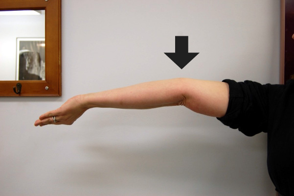 hypermobility-elbow.jpg