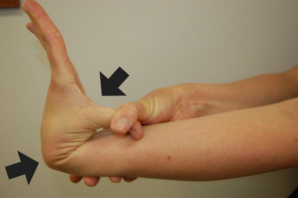 hypermobility-thumb.jpg