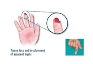 digital-ulcer-hand--255x175.jpg