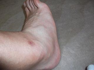 腫れた右足