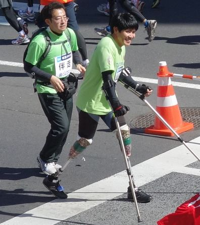 両足義足のランナー