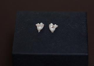 乳歯(3ヶ月目)