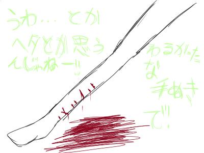 二の腕・背中術後① (1)