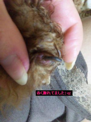 指先の炎症