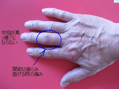 右手・関節リウマチ?