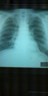胸部 X-P1
