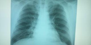 胸部 X-P
