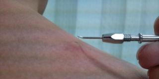 挫刺鍼.8・23・1jpg