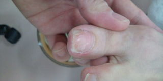 巻爪 後1