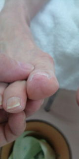 巻爪 後6