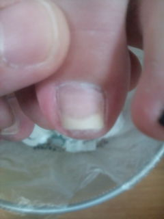 巻爪7.14・1