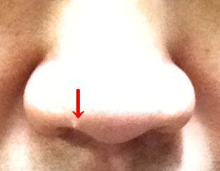 鼻の良性腫瘍