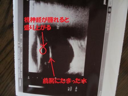 044_convert_20120317174619.jpg