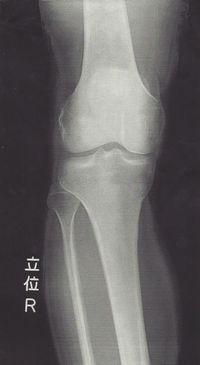 右足膝のレントゲン写真正面から